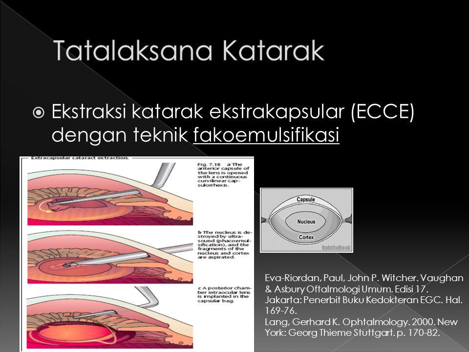 Tatalaksana Katarak Ekstraksi katarak ekstrakapsular (ECCE) dengan teknik fakoemulsifikasi.