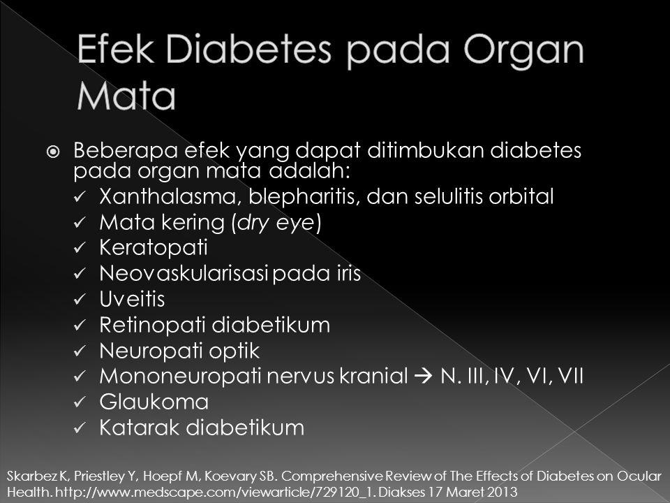 Efek Diabetes pada Organ Mata