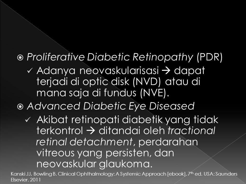 Proliferative Diabetic Retinopathy (PDR)