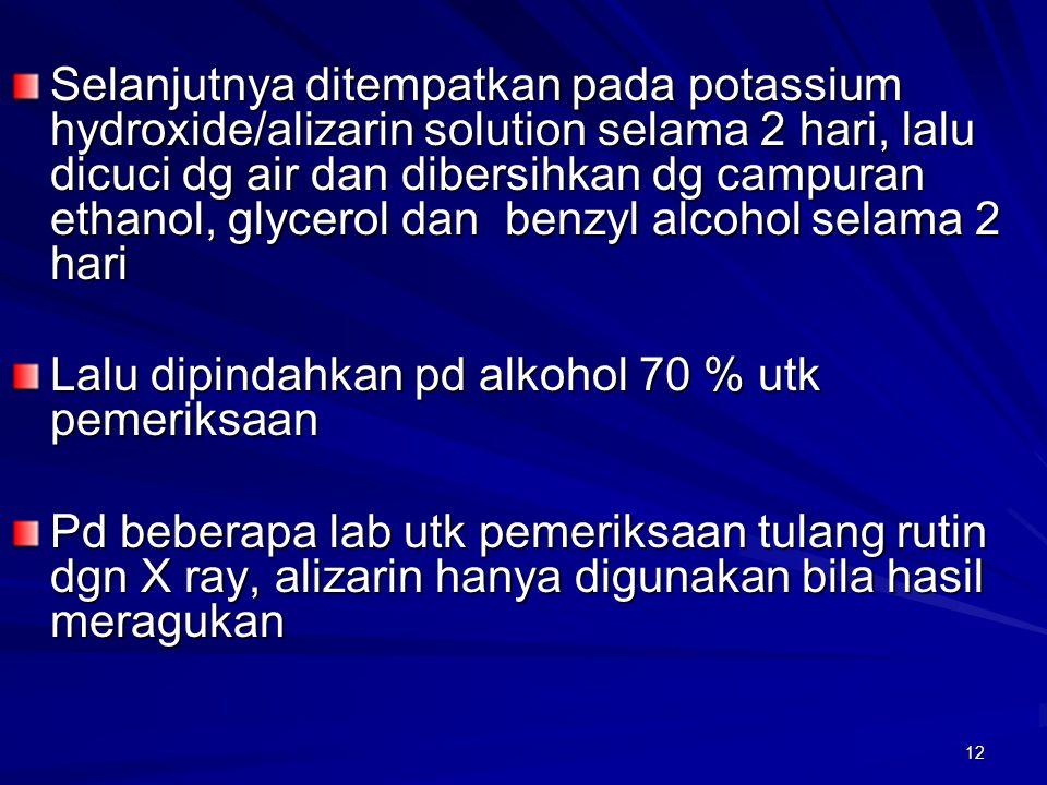 Selanjutnya ditempatkan pada potassium hydroxide/alizarin solution selama 2 hari, lalu dicuci dg air dan dibersihkan dg campuran ethanol, glycerol dan benzyl alcohol selama 2 hari
