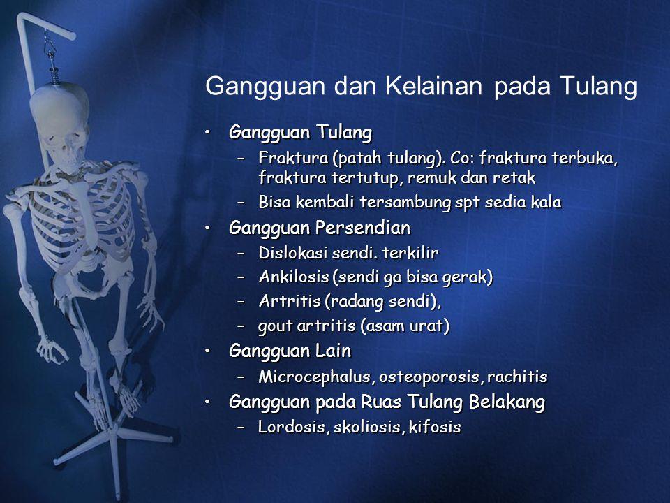 Gangguan dan Kelainan pada Tulang