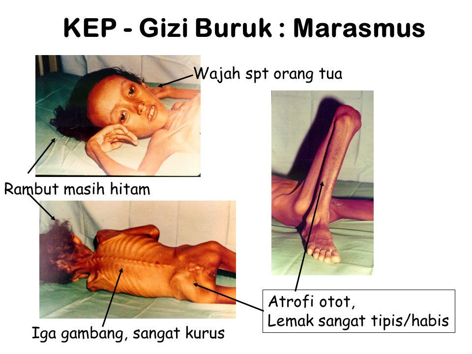 KEP - Gizi Buruk : Marasmus