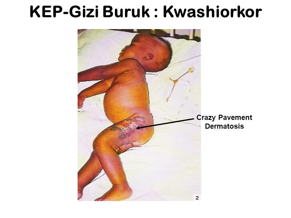 KEP-Gizi Buruk : Kwashiorkor