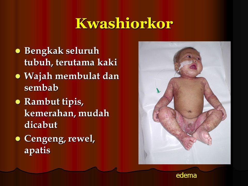 Kwashiorkor Bengkak seluruh tubuh, terutama kaki