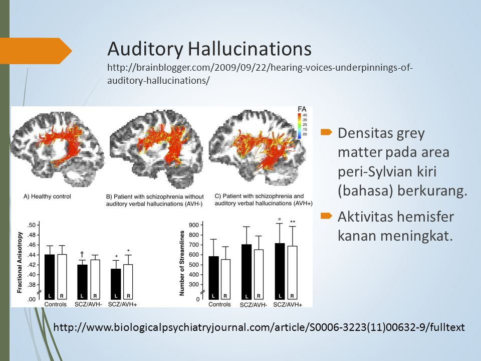Auditory Hallucinations http://brainblogger