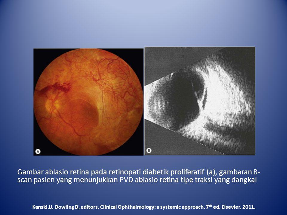 Gambar ablasio retina pada retinopati diabetik proliferatif (a), gambaran B-scan pasien yang menunjukkan PVD ablasio retina tipe traksi yang dangkal