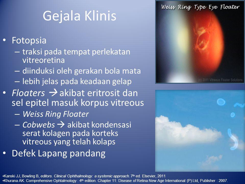 Gejala Klinis Fotopsia