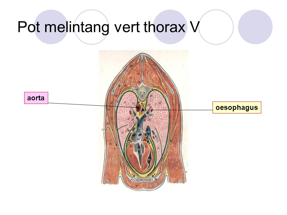 Pot melintang vert thorax V