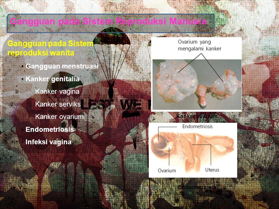 Gangguan pada Sistem Reproduksi Manusia
