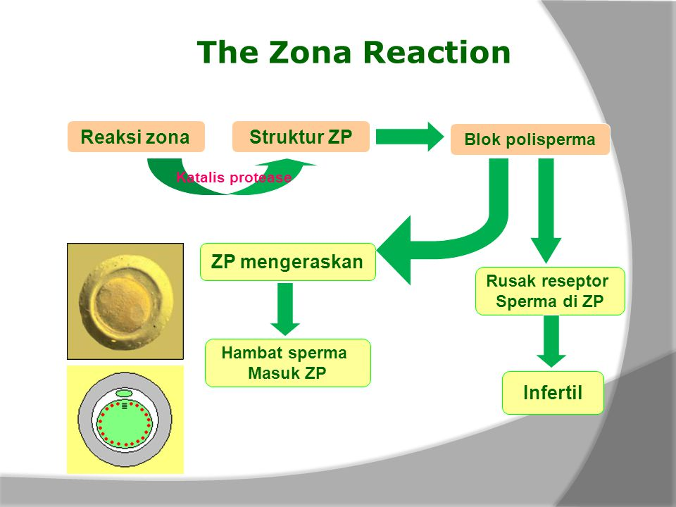 The Zona Reaction Reaksi zona Struktur ZP ZP mengeraskan Infertil