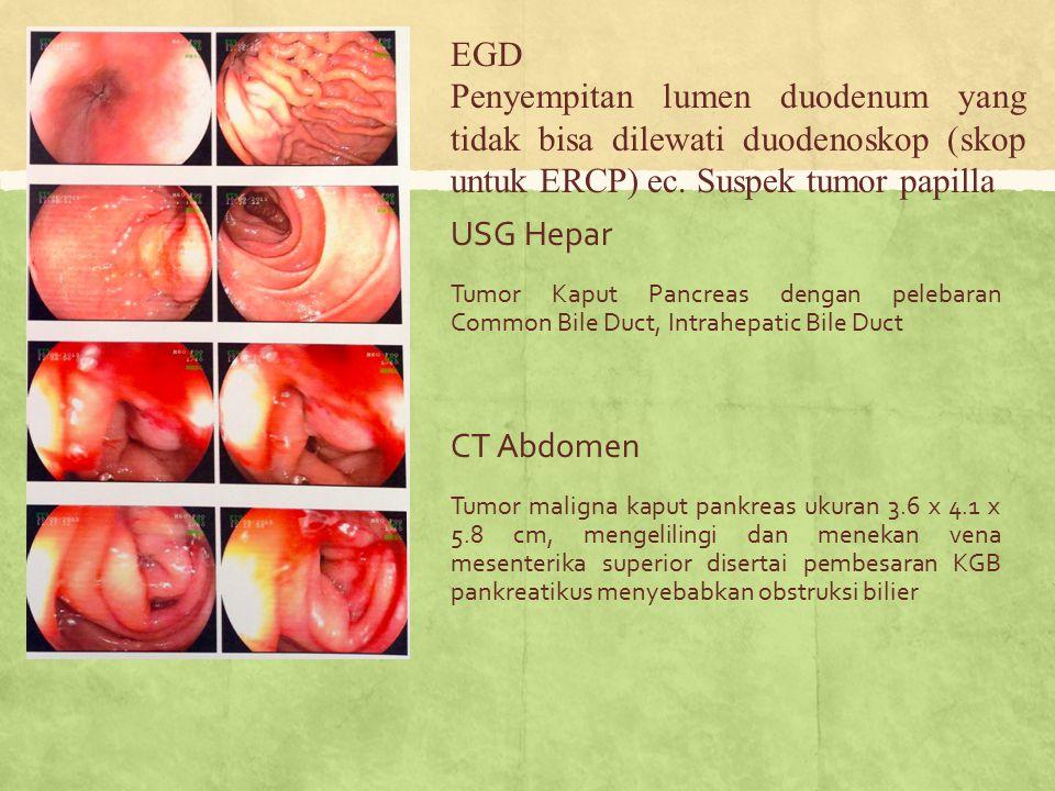 EGD Penyempitan lumen duodenum yang tidak bisa dilewati duodenoskop (skop untuk ERCP) ec. Suspek tumor papilla.