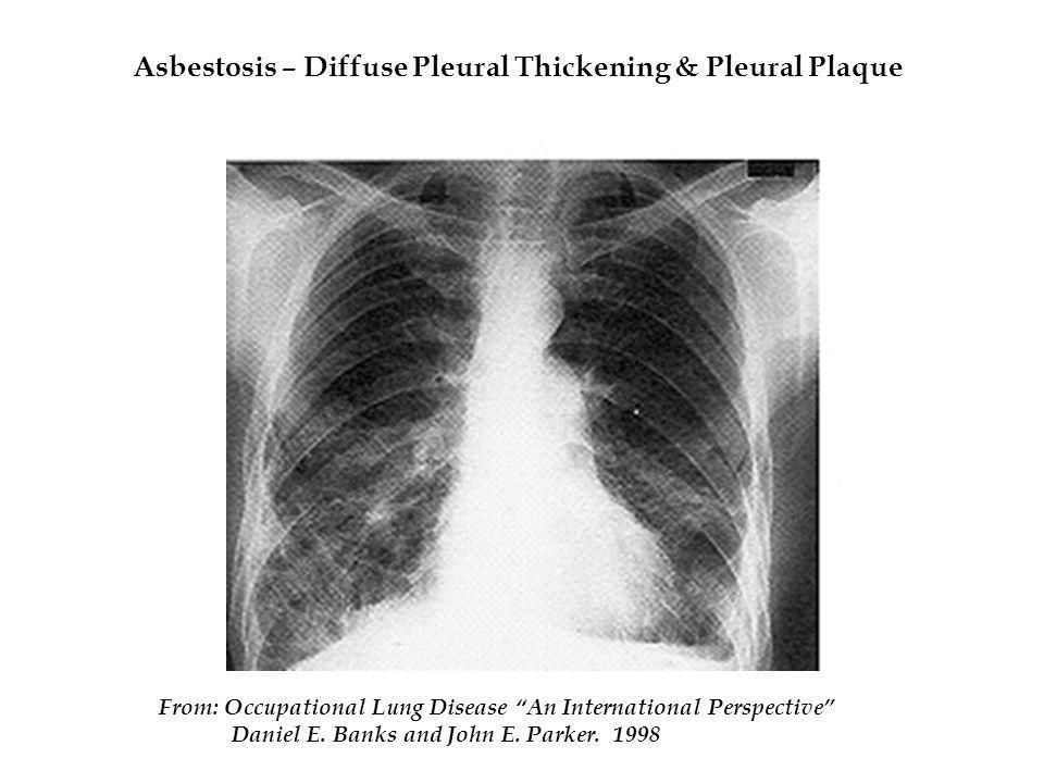 Asbestosis – Diffuse Pleural Thickening & Pleural Plaque