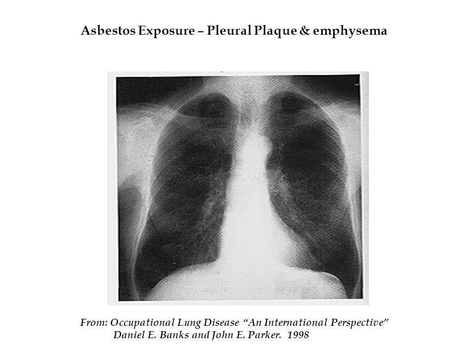 Asbestos Exposure – Pleural Plaque & emphysema