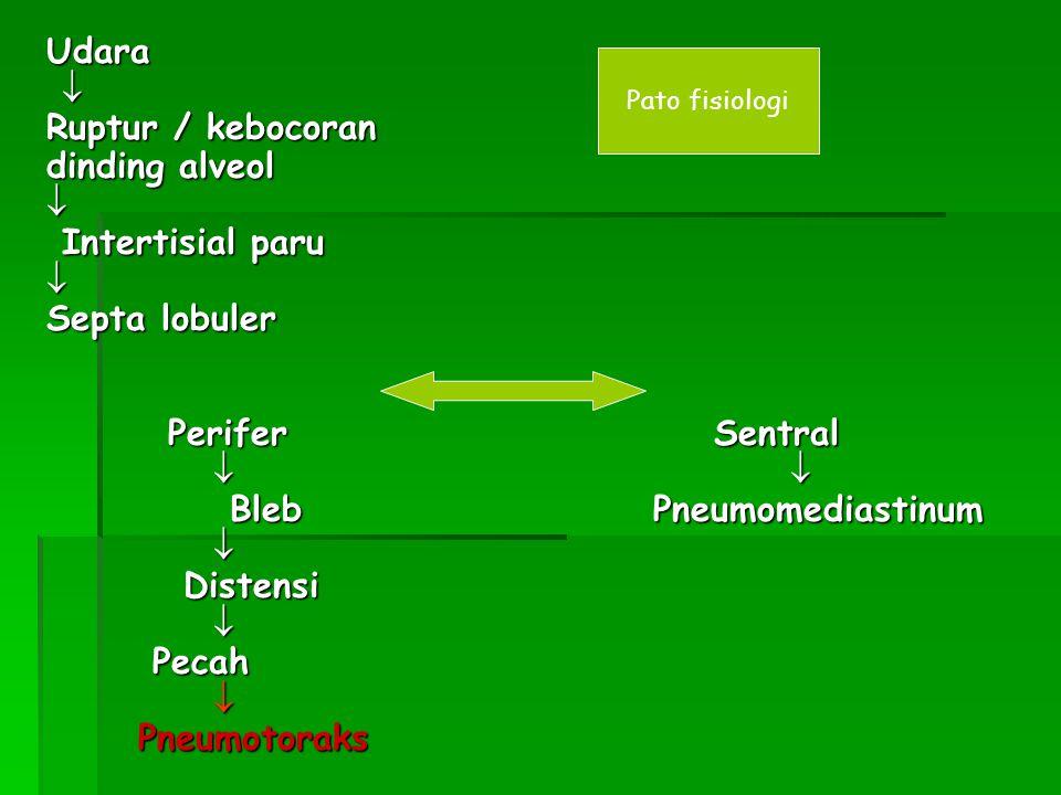 Bleb Pneumomediastinum Distensi Pecah Pneumotoraks