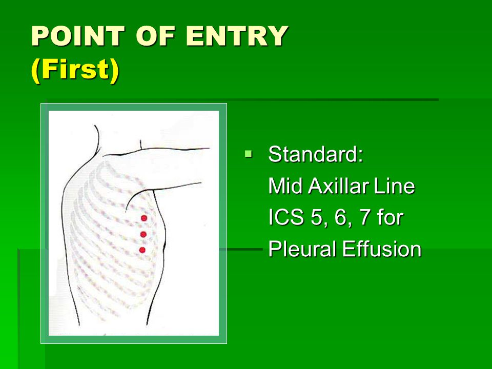POINT OF ENTRY (First) Standard: Mid Axillar Line ICS 5, 6, 7 for