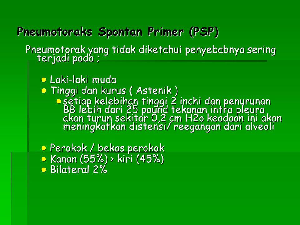 Pneumotoraks Spontan Primer (PSP)