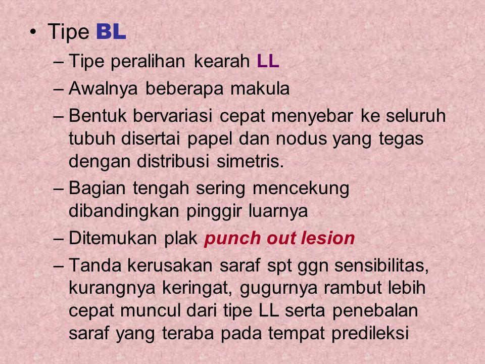 Tipe BL Tipe peralihan kearah LL Awalnya beberapa makula