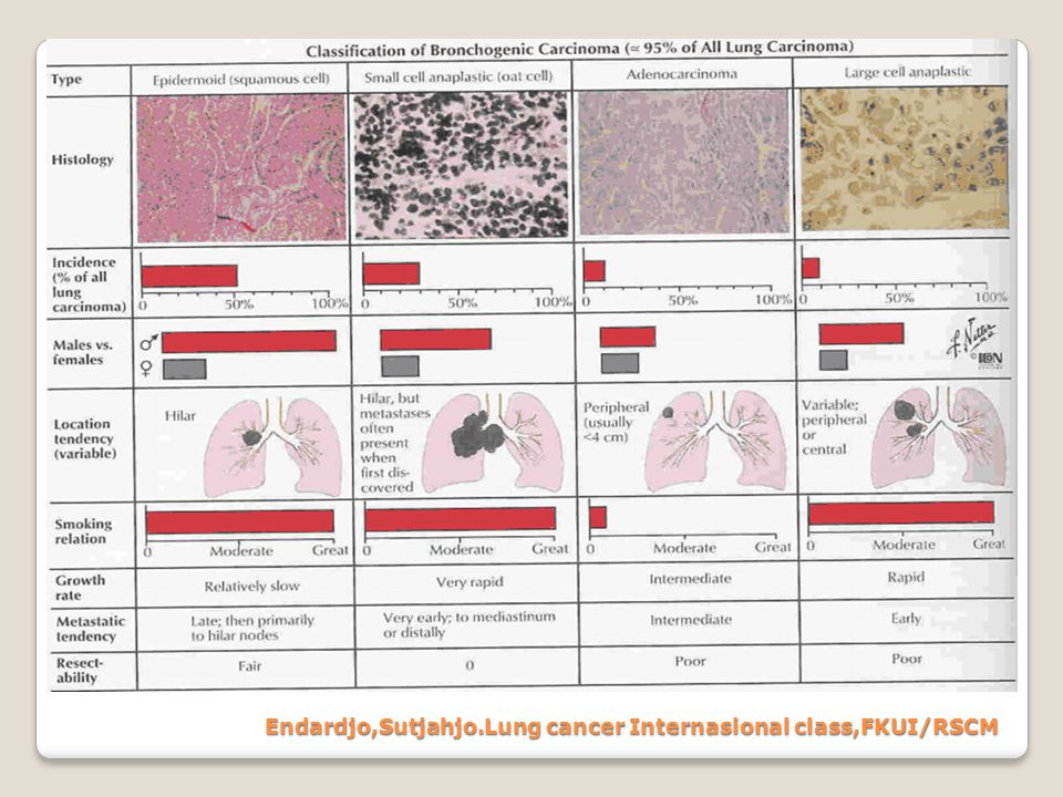 Endardjo,Sutjahjo.Lung cancer Internasional class,FKUI/RSCM