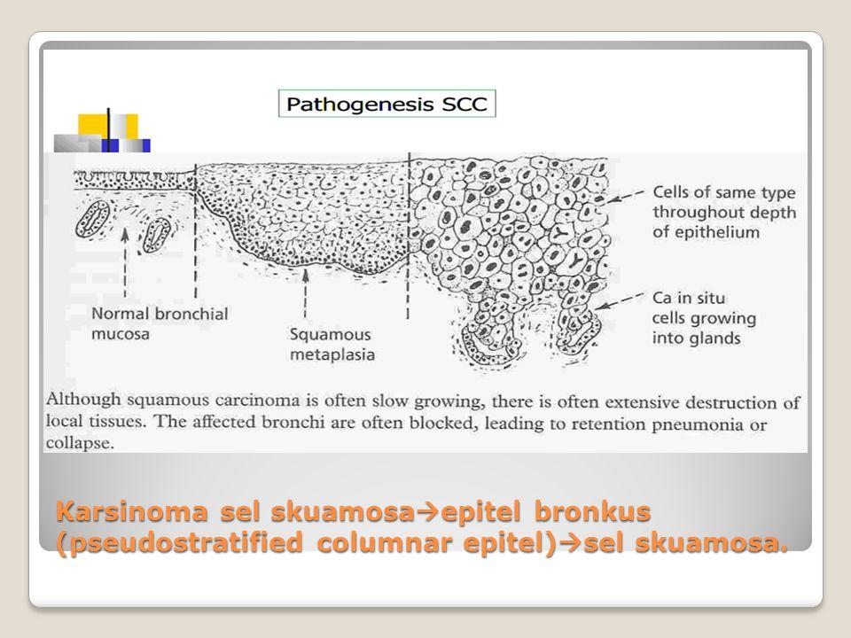 Karsinoma sel skuamosaepitel bronkus (pseudostratified columnar epitel)sel skuamosa.
