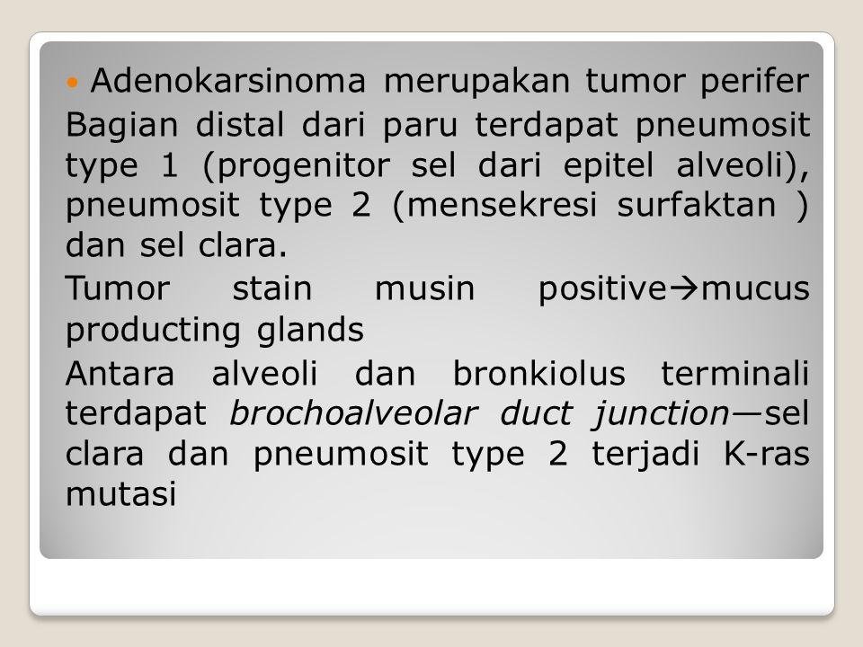 Adenokarsinoma merupakan tumor perifer