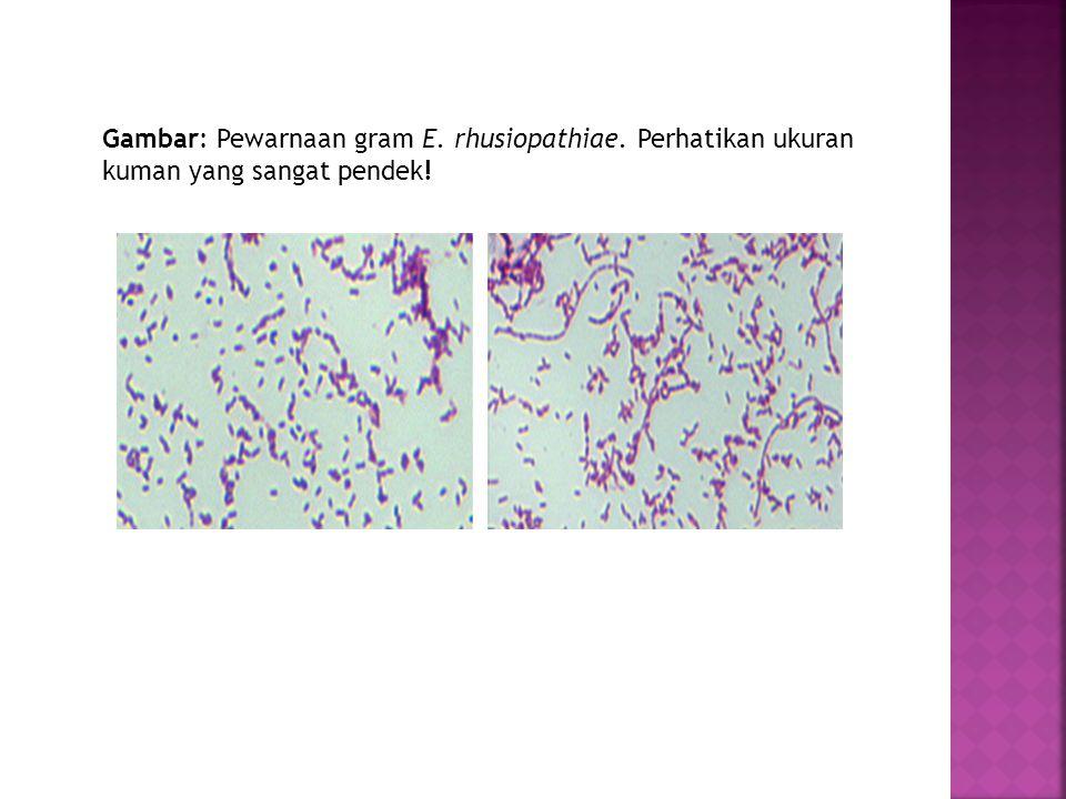 Gambar: Pewarnaan gram E. rhusiopathiae