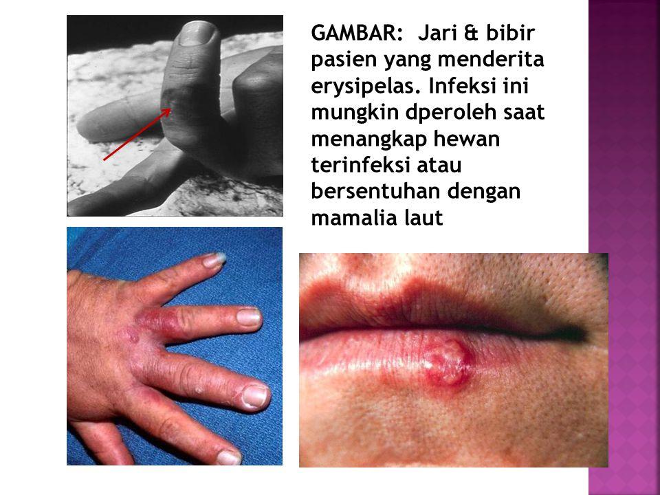 GAMBAR: Jari & bibir pasien yang menderita erysipelas