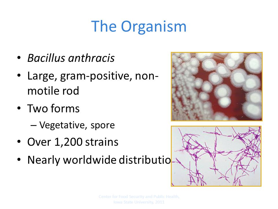 The Organism Bacillus anthracis Large, gram-positive, non-motile rod