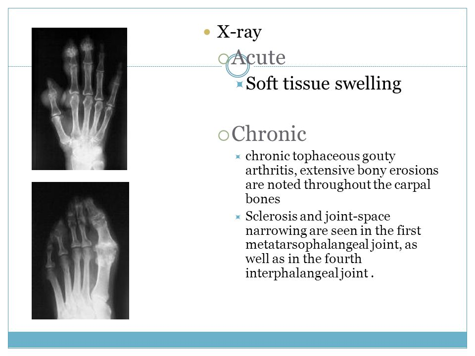 Acute Chronic Soft tissue swelling X-ray