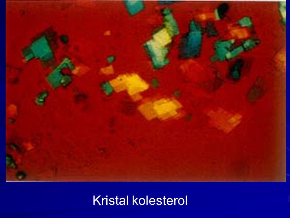 Kristal kolesterol