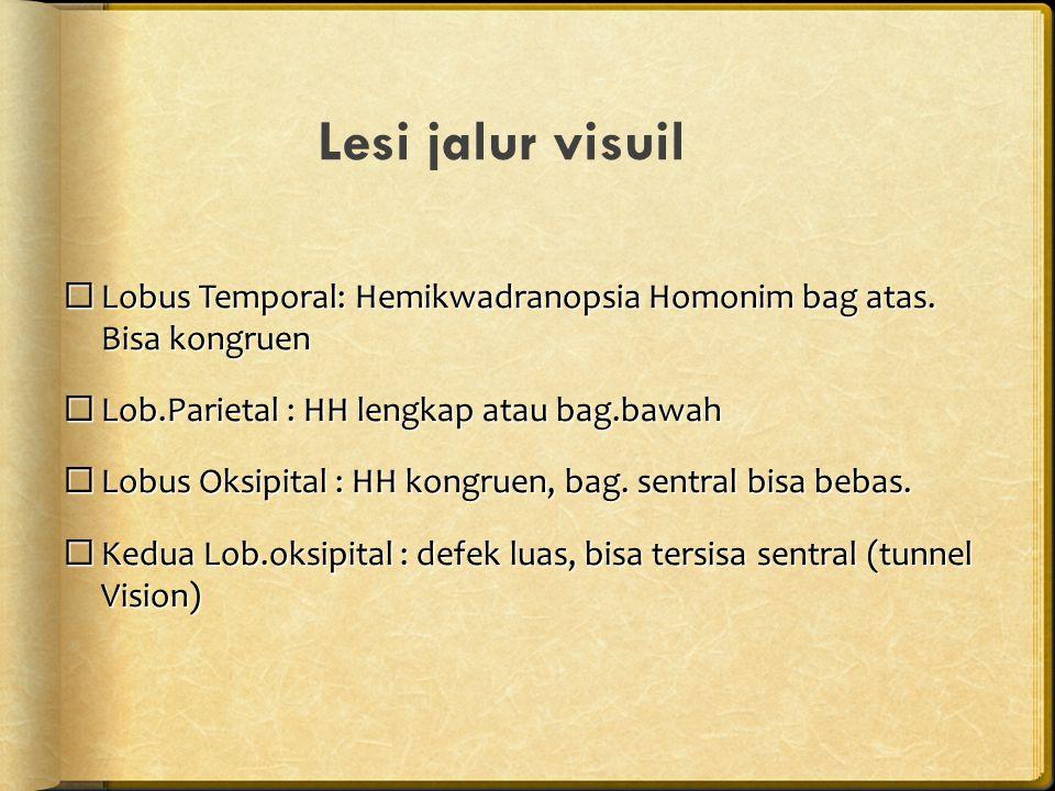 Lesi jalur visuil Lobus Temporal: Hemikwadranopsia Homonim bag atas. Bisa kongruen. Lob.Parietal : HH lengkap atau bag.bawah.