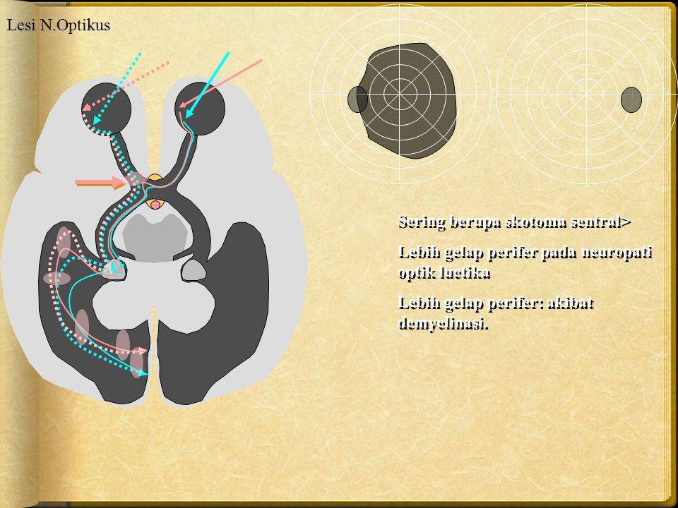 Lesi N.Optikus Sering berupa skotoma sentral> Lebih gelap perifer pada neuropati optik luetika.