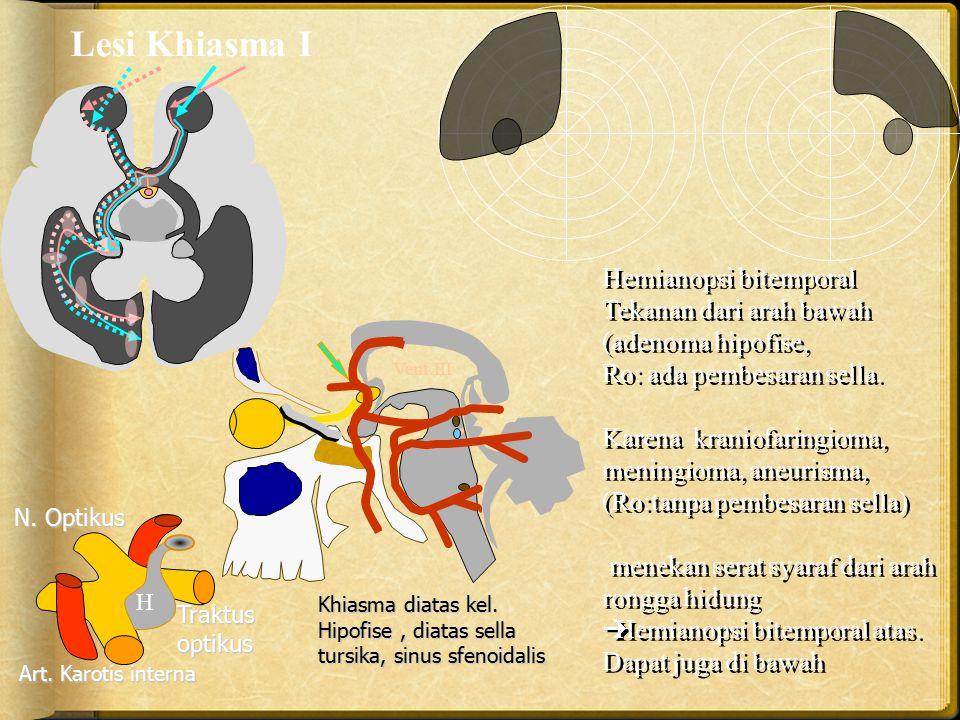 Lesi Khiasma I Hemianopsi bitemporal