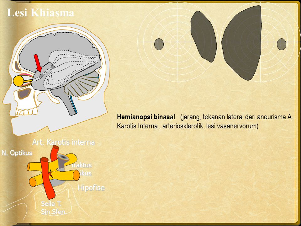 Lesi Khiasma Hemianopsi binasal (jarang, tekanan lateral dari aneurisma A. Karotis Interna , arteriosklerotik, lesi vasanervorum)