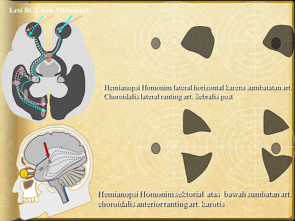 Lesi BGL krn. Oklusi art. Hemianopsi Homonim lateral horizontal karena sumbatatan art. Choroidalis lateral ranting art. Sebralis post.