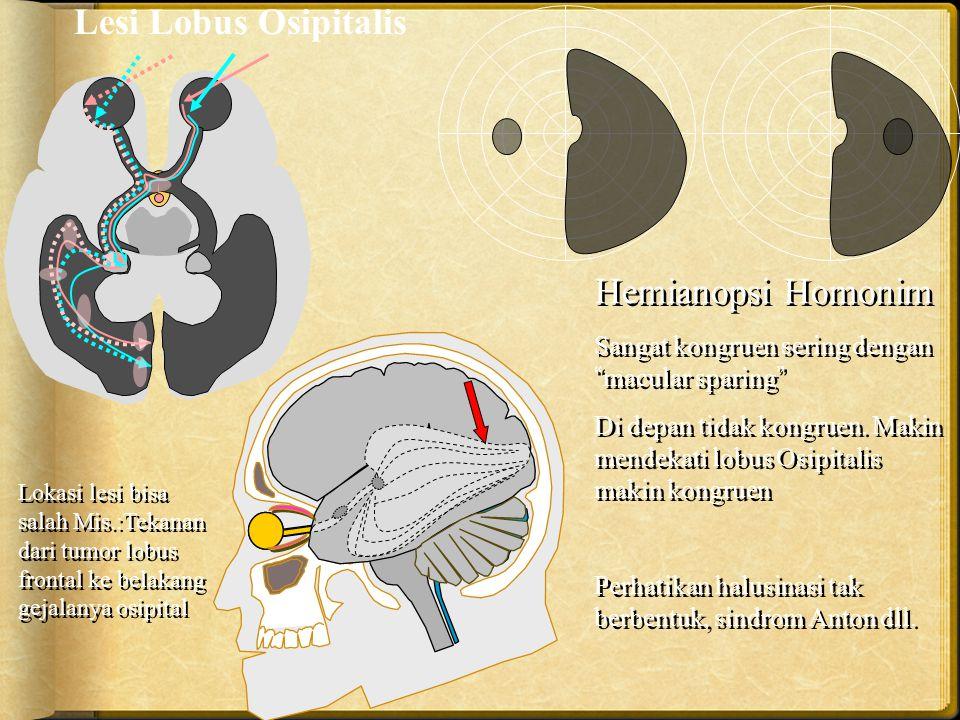Lesi Lobus Osipitalis Hemianopsi Homonim
