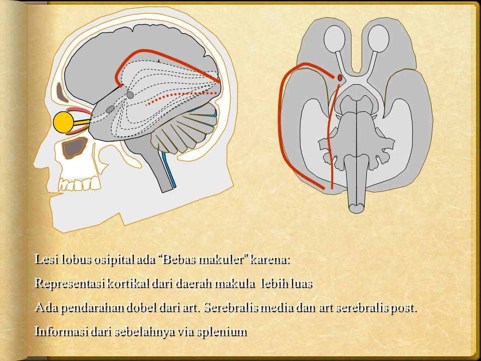 Lesi lobus osipital ada Bebas makuler karena: