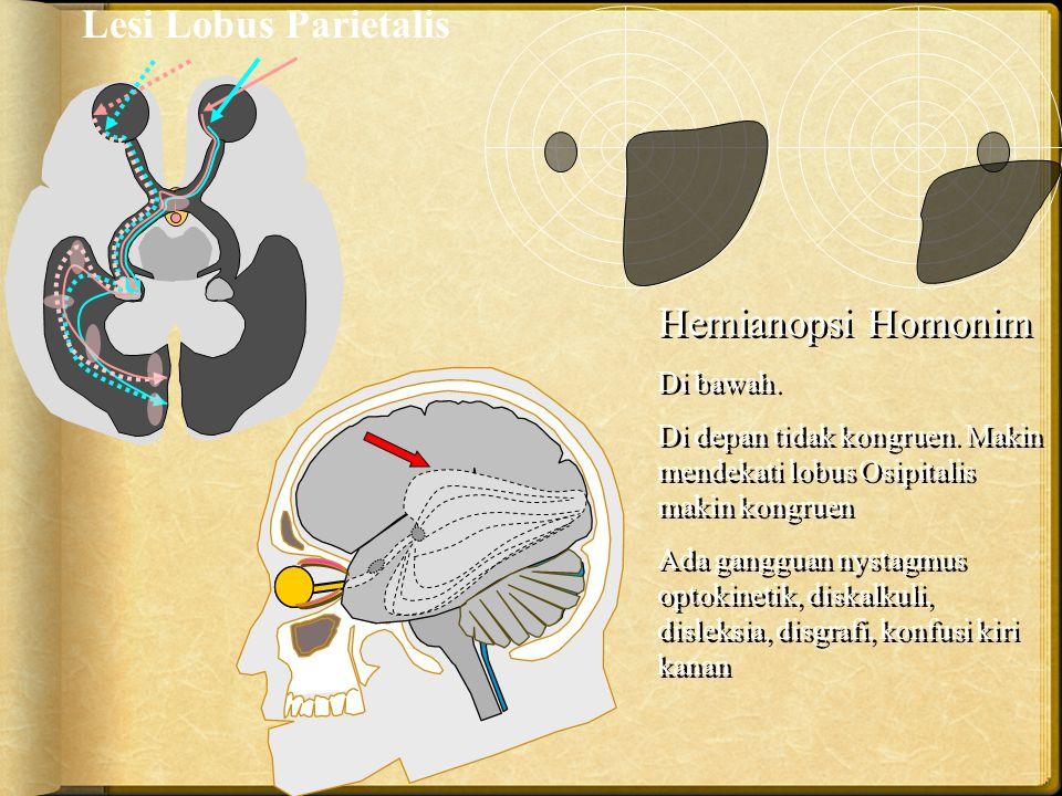 Lesi Lobus Parietalis Hemianopsi Homonim Di bawah.