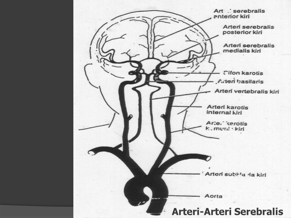 Arteri-Arteri Serebralis