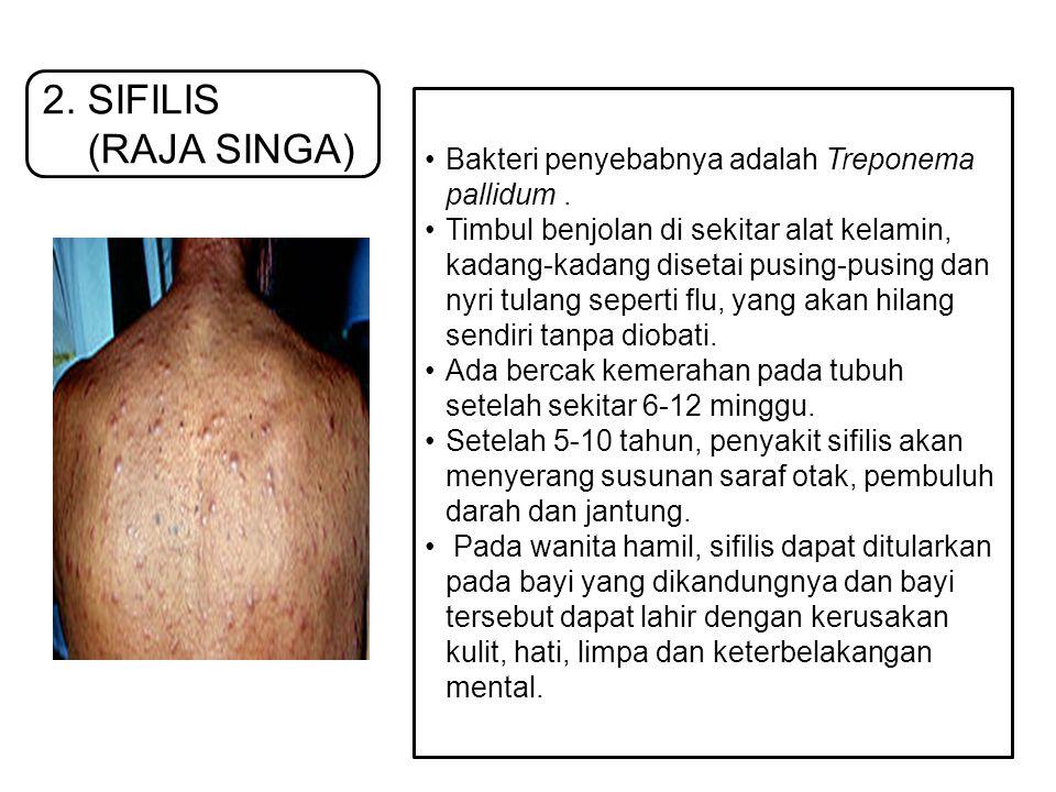 2. SIFILIS (RAJA SINGA) Bakteri penyebabnya adalah Treponema pallidum .