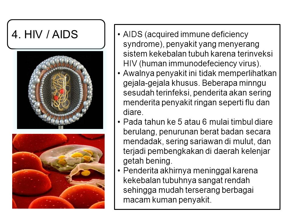 4. HIV / AIDS