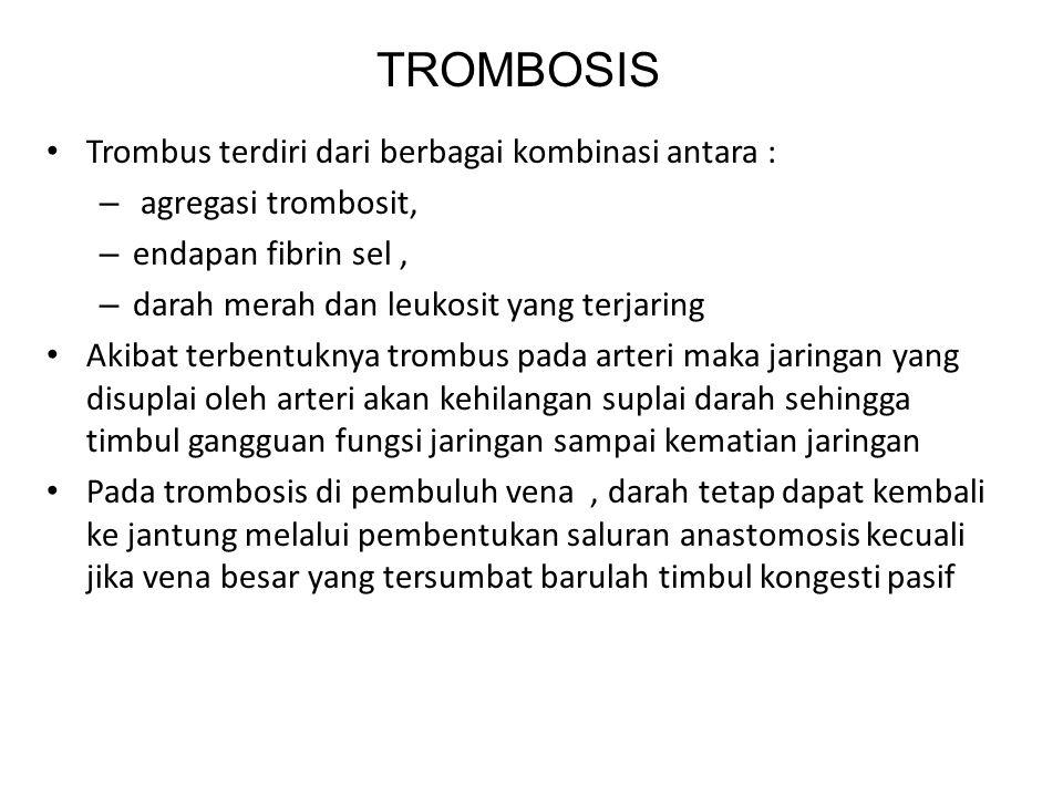 TROMBOSIS Trombus terdiri dari berbagai kombinasi antara :