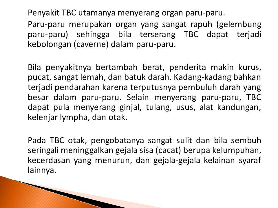 Penyakit TBC utamanya menyerang organ paru-paru