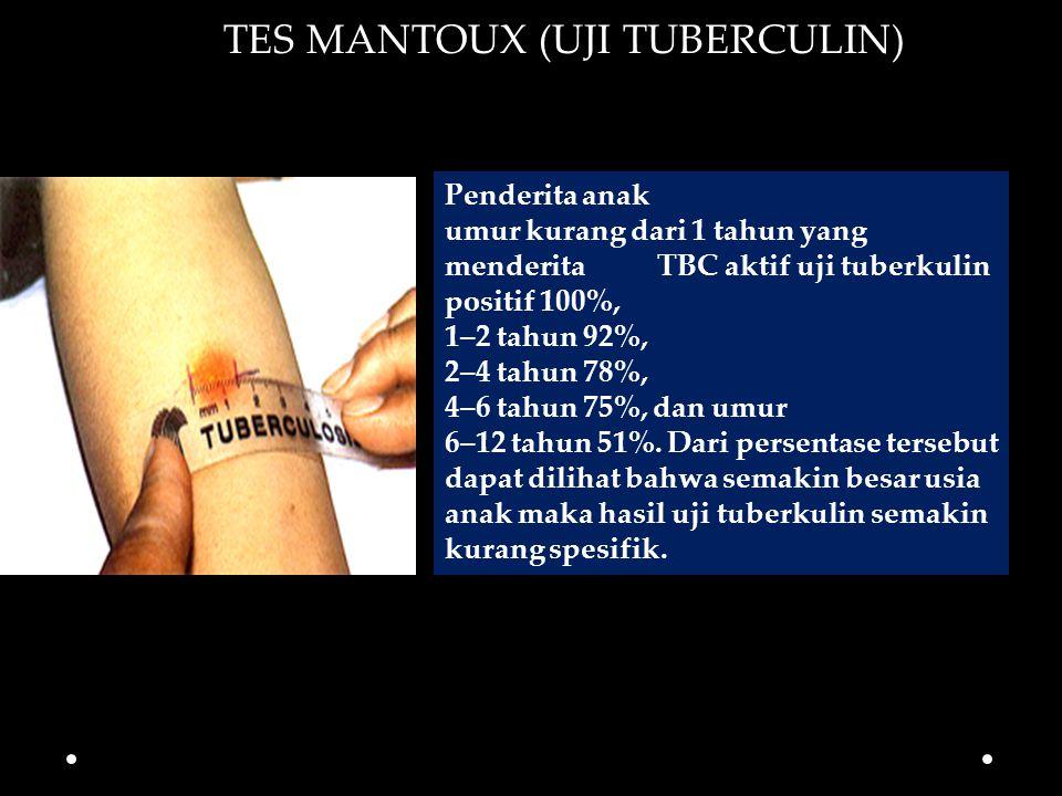 TES MANTOUX (UJI TUBERCULIN)