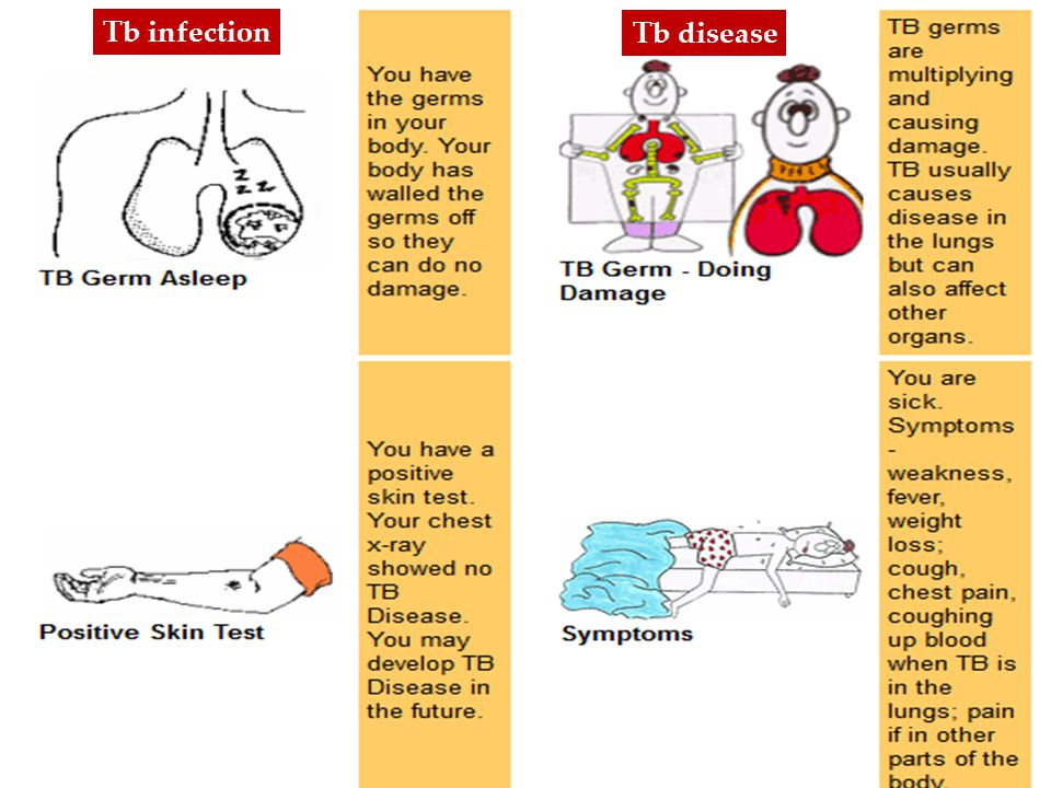 Tb infection Tb disease