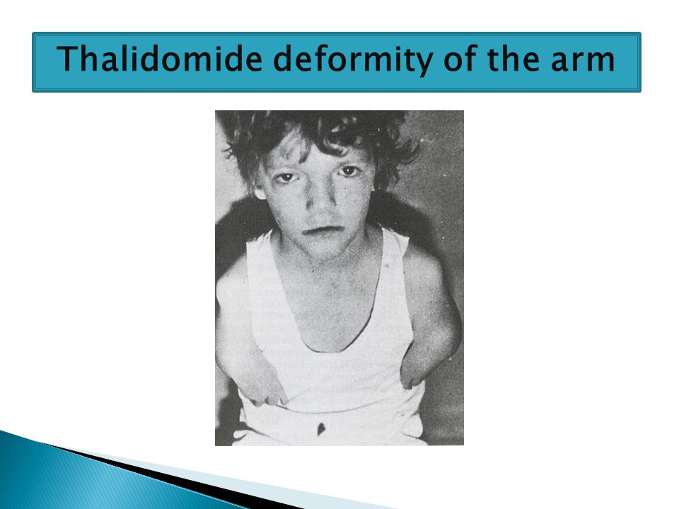 Thalidomide deformity of the arms