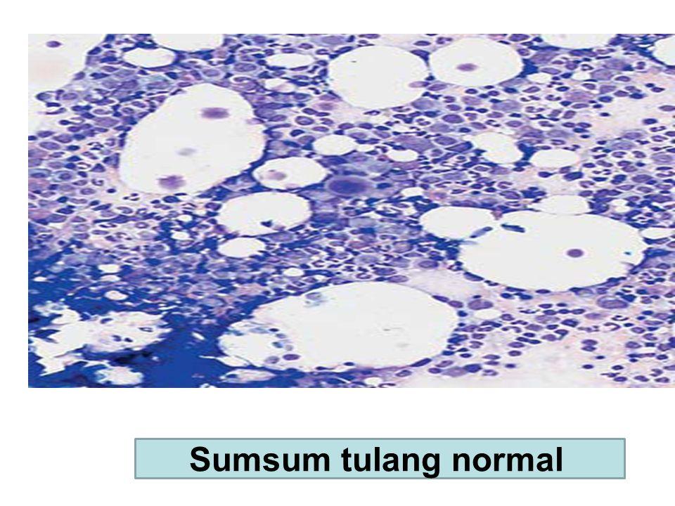 Sumsum tulang normal