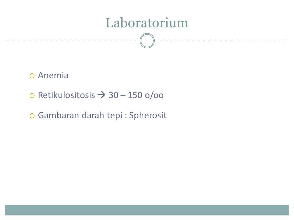 Laboratorium Anemia Retikulositosis  30 – 150 o/oo