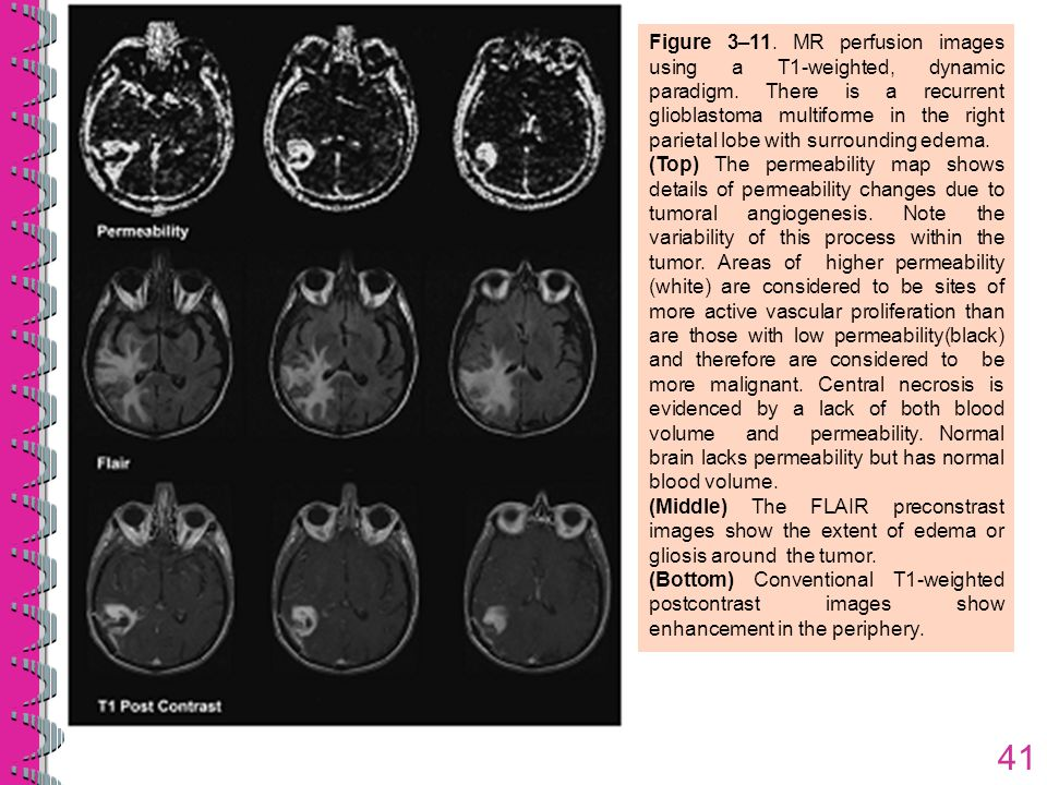 Figure 3–11. MR perfusion images using a T1-weighted, dynamic paradigm