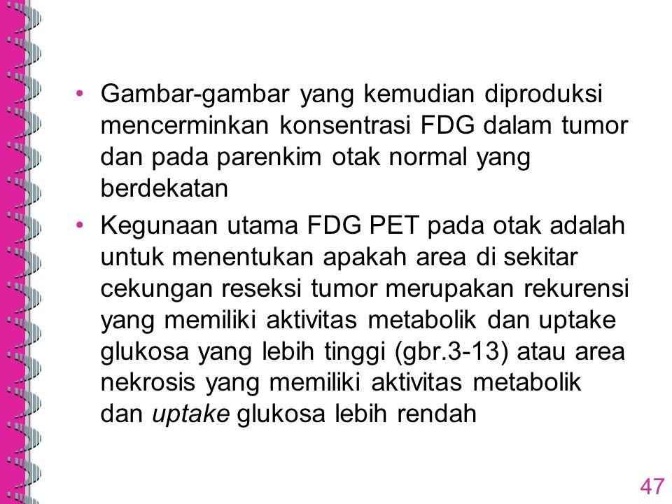 Gambar-gambar yang kemudian diproduksi mencerminkan konsentrasi FDG dalam tumor dan pada parenkim otak normal yang berdekatan