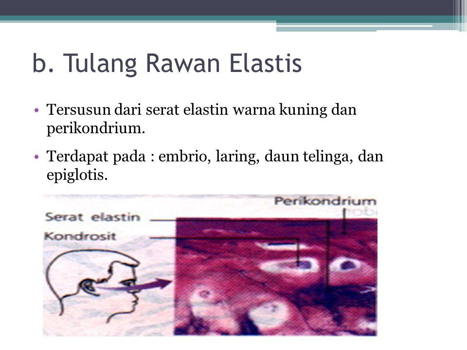 b. Tulang Rawan Elastis Tersusun dari serat elastin warna kuning dan perikondrium.